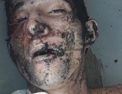 Atenção! Imagens Fortes: Polícia investiga se corpo encontrado em São Gonçalo do Amarante é de jovem sequestrado em Macaíba