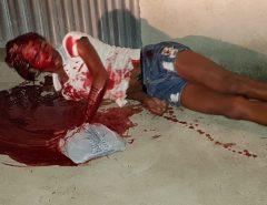 Travesti é baleada na cabeça em Macaíba (Atenção imagens Fortes)