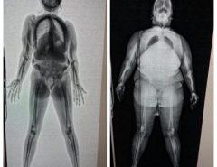 Escaneamento raio-x é iniciado em presídios do Rio Grande do Norte