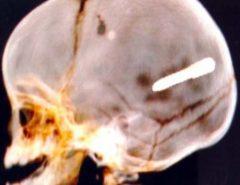 Tragédia: Bebê de 10 meses morre após ter crânio perfurado por prego
