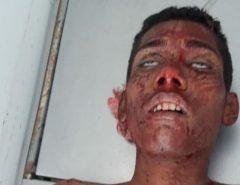 Atenção Imagens Fortes: Três morrem e um fica ferido em confronto com a PM em São Gonçalo do Amarante