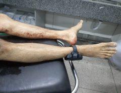 Após ser liberado na audiência de custódia bandido morto em Macaíba andava livre e armado