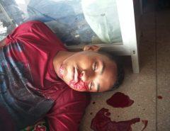 Macaíba: Homem reage a assalto e mata bandido (Atenção! Imagens Fortes)