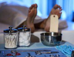 Revelação: Após Autopsias evidências apontam para a coagulação extrema como principal complicação e morte pelo coronavírus