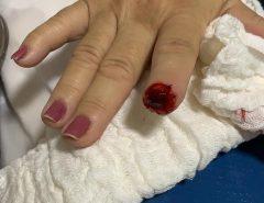 Em Mossoró médica tem parte do dedo arrancado por paciente após o parto